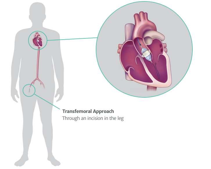 Transfemoral Approach Diagram