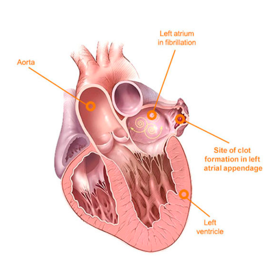 Cross-section of the heart showing internals