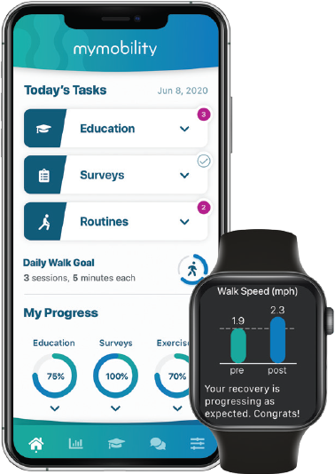 MyMobility screen displayed on an iPhone and an Apple Watch